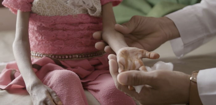 La fame dei bimbi yemeniti va dritta al cuore